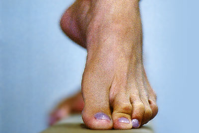 orthotic foot care